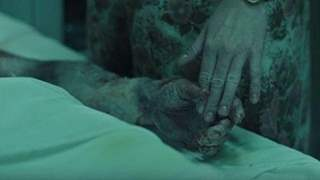 'Chernobyl': How The Radiation Burns Were Created by Make-Up & Prosthetics