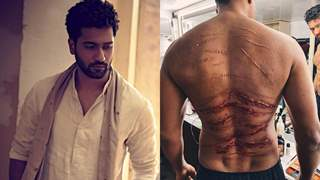 Meet the man behind Vicky Kaushal's petrifying bruised and injured look