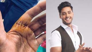 Shagun Pandey of 'Meet' gets six stitches on this hand; showcases extreme dedication to work